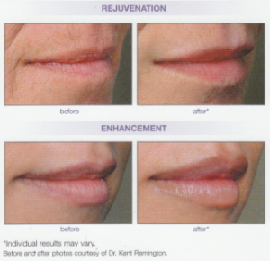 Juvederm - Chrysalis Clinic | Ottawa Cosmetic and Skin Care